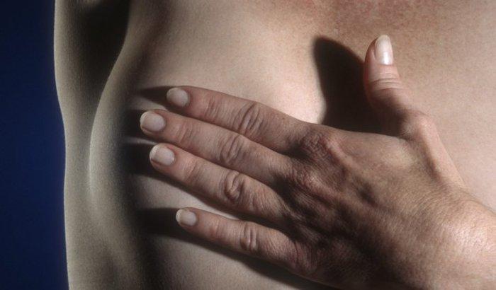 Reconstrução mama pós câncer