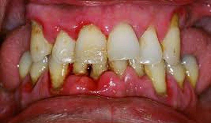 risco de cancer bucal