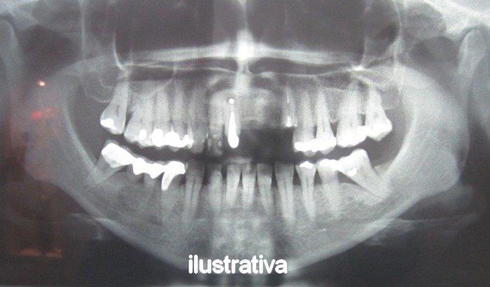 Cirurgia dentária para minha mãe