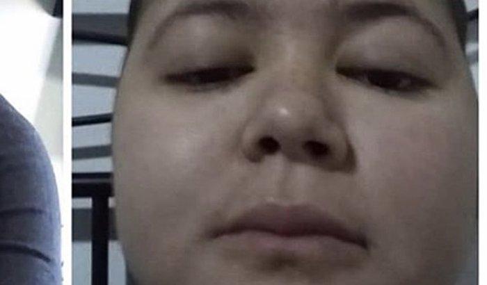 Transplante de medula da Rebeca