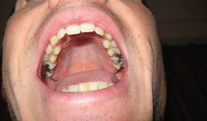 Vakinha pra obturação no dente que tá doendo