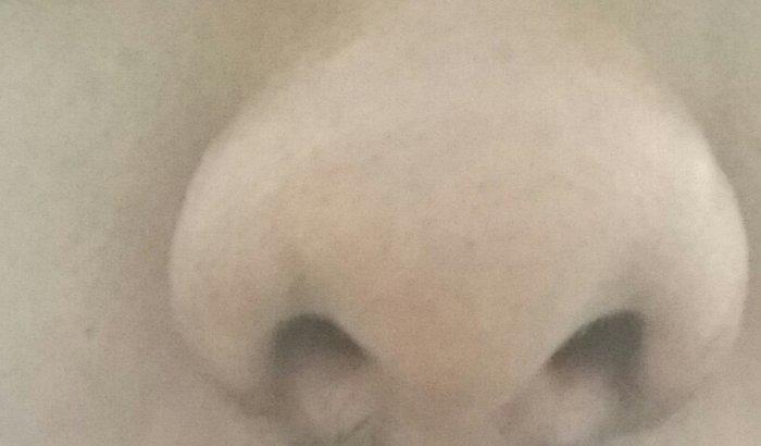 Cirurgião plástica para correção  de nariz