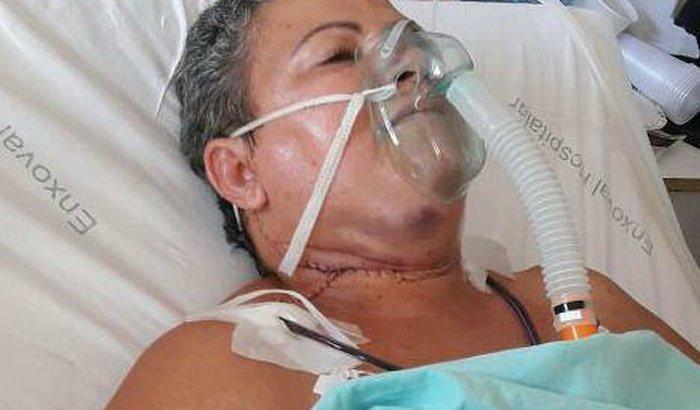 tratamento do CANCERNOMA EPIDERMOIDE DE CABEÇA E PESCOÇO