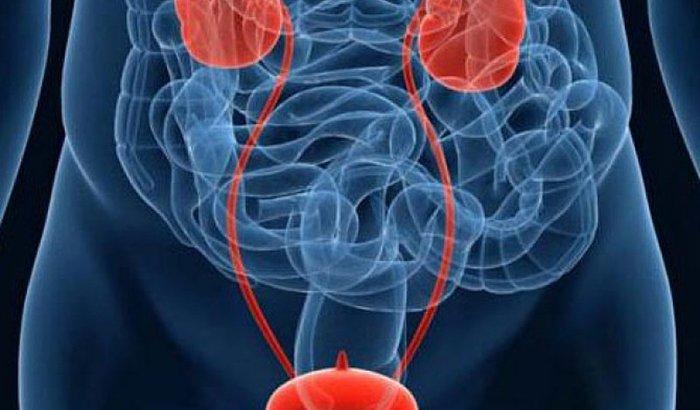 Cirurgia de Uretrotomia