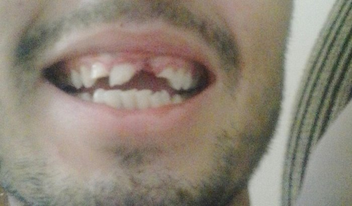 Ajude Iuri voltar a sorrir
