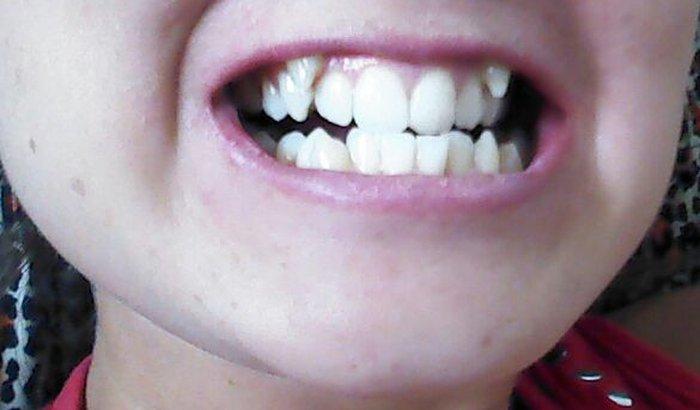 Arrumar meus dentes não por estética e sim por necessidade