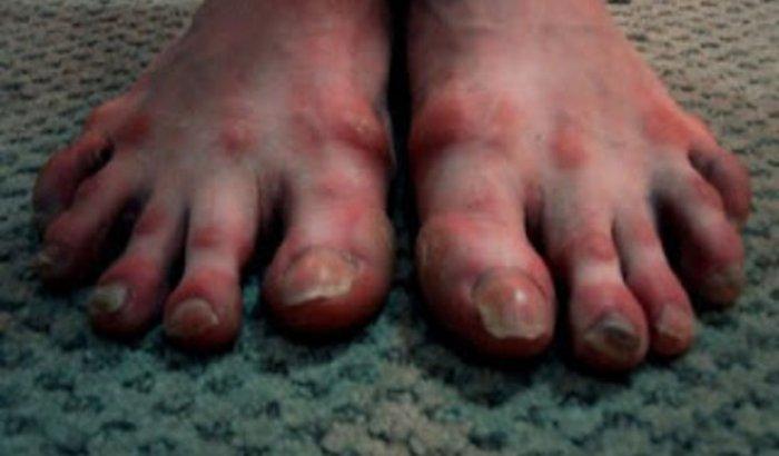 Ajuda para Amanda arrumar o pé... #tatenso