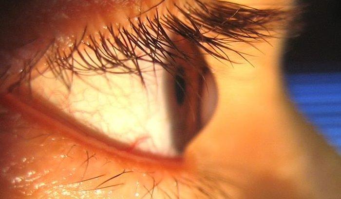 Me ajude a não perder a visão