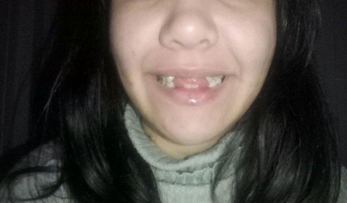 Quero meu sorriso