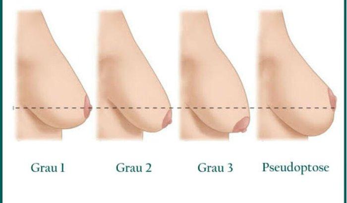 Ajuda para a cirurgia de mastopexia / seio