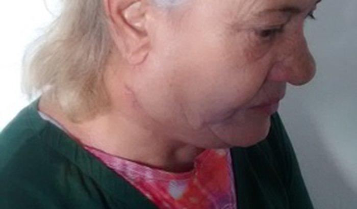 Tratamento de quimioterapia e radioterapia da minha mãe