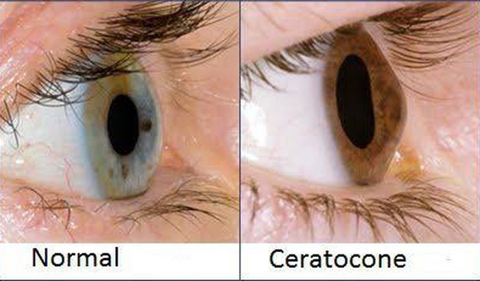 Cirurgia da retina
