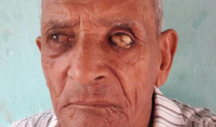 Velhinho Cego de 82 anos e Sem Família!