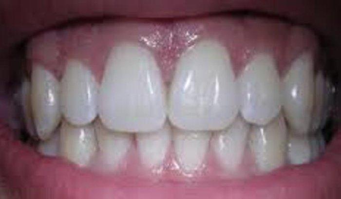 colocação arca dentaria