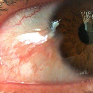 2f3e3f5cd Ajude-me para minha cirurgia de pterigio nos olhos - Vaquinhas ...