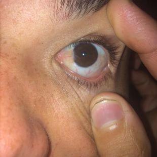 830c8653b Cirurgia de Pterígio (Nos 2 olhos ) - Vaquinhas online | Vakinha.com.br