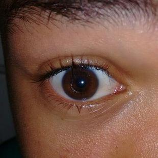 Matheus - cirurgia de Crosslinking nos olhos - Vaquinhas online ... 7a2fd6679f