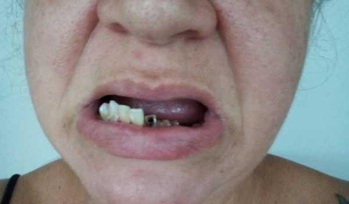 Tratamento dentário