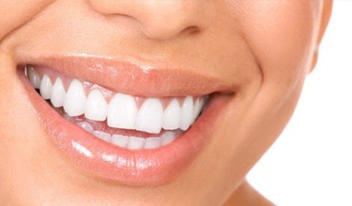 Retirada de dentes siso
