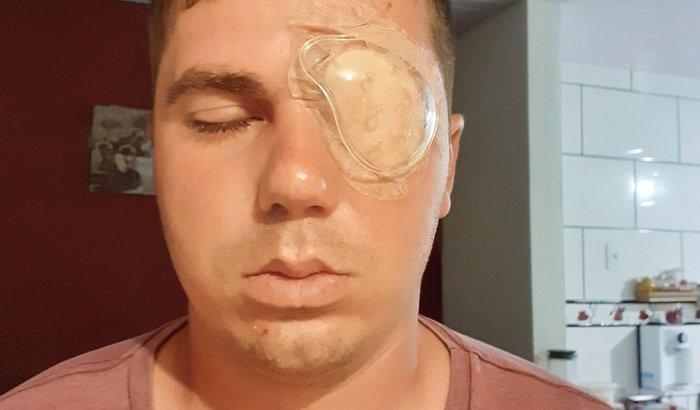 Cirurgia do Olho esquerdo - João Manoel