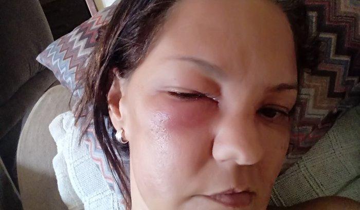 Ajudar Leandra fazer uma dacriocistorrinostomia
