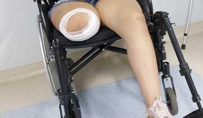 Ajuda pra compra uma protese e as despesa.
