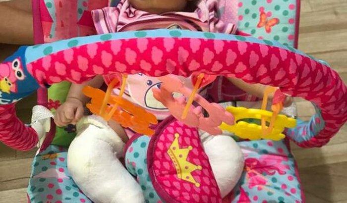 Ajude Heloísa Zelita, de apenas 3 meses,para compra de gessos.
