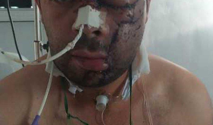 Ajuda nas despesas hospitalar Jean Carlos