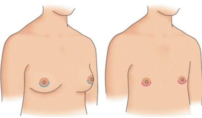 Mastectomia do Antônio