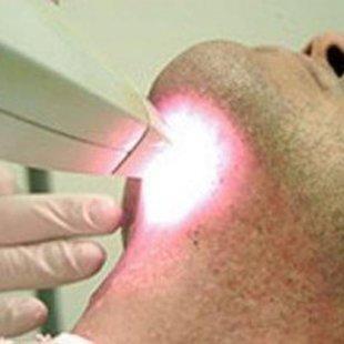 Cover depila ao laser 300x216