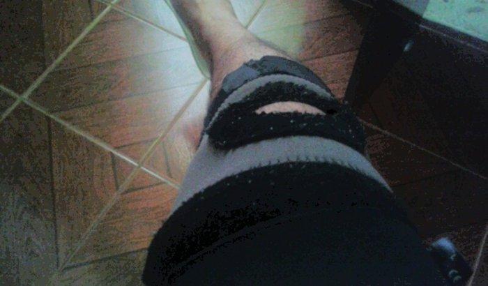 cirurgia de ligamentos