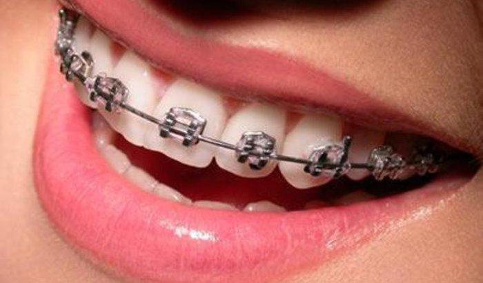 Ajude-me a colocar aparelho dentário