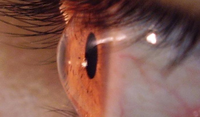 Cirurgia no Olho