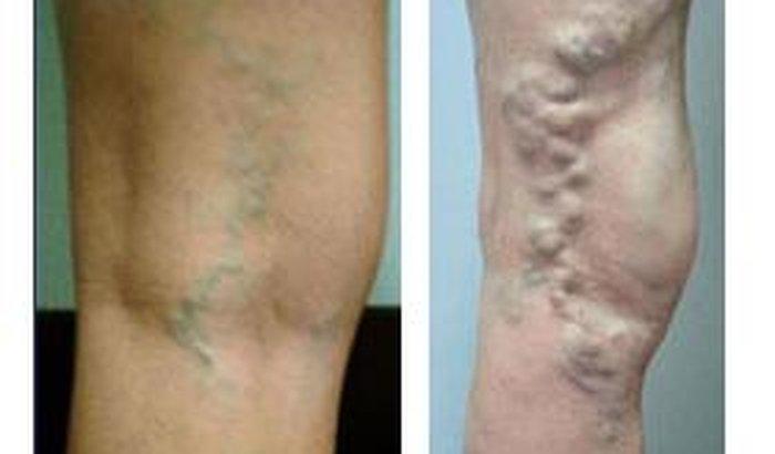 Flórida pernas da remoção veias nas de