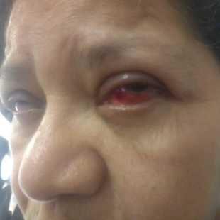 3a49db48b Cirurgia nos dois olhos para voltar Enxergar - Vaquinhas online ...