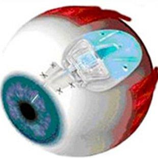 Cover cirurgias para glaucoma 8