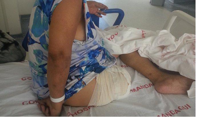 Ajudem a Dona Adasia à comprar uma prótese de perna