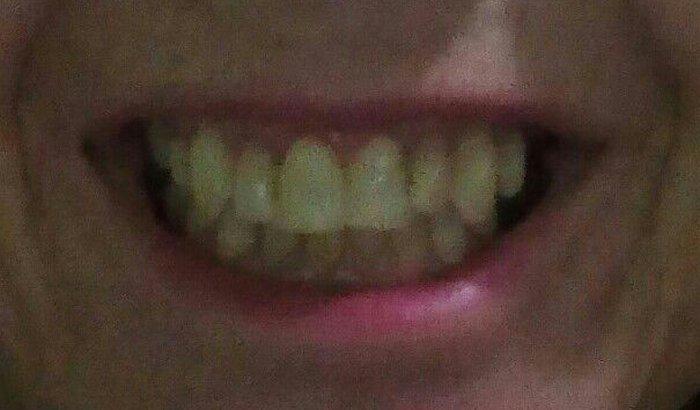 Tratamento dentário para minha mãe.