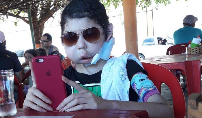 Ajuda Luana Fonteles - Paliativa vencendo o rabdomiossarcoma