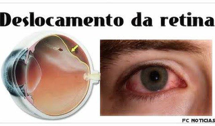 Descolamento de retina.