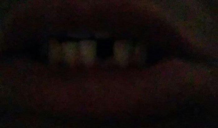 Me ajude a colocar meu dente de volta