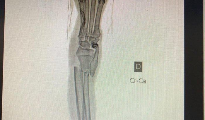 Cirurgia do Stiff