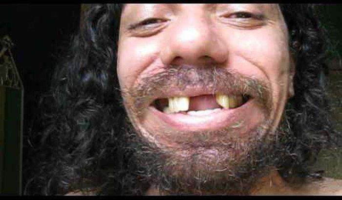 Dentes tóxicos novos para o Bluezão virã galã da GLOBO.