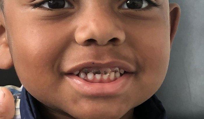 Um sorriso saudável (e ainda mais lindo) para o Davi