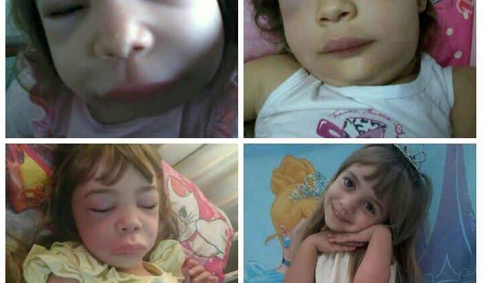 Ajudar criança com doença rara AEH