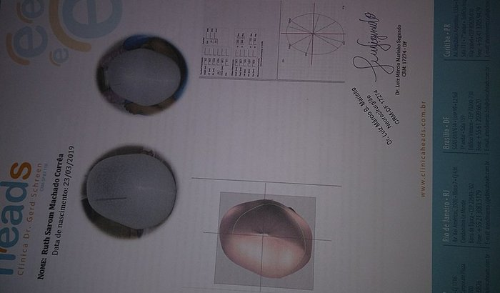 Tratamento de plagiocefalia posicional da Ruth Sarom
