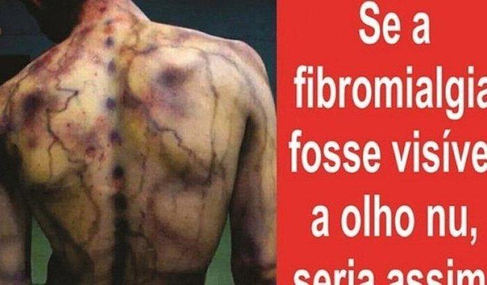 Audiência Pública Fibromialgia-Ajudem a lutar por mais direitos!