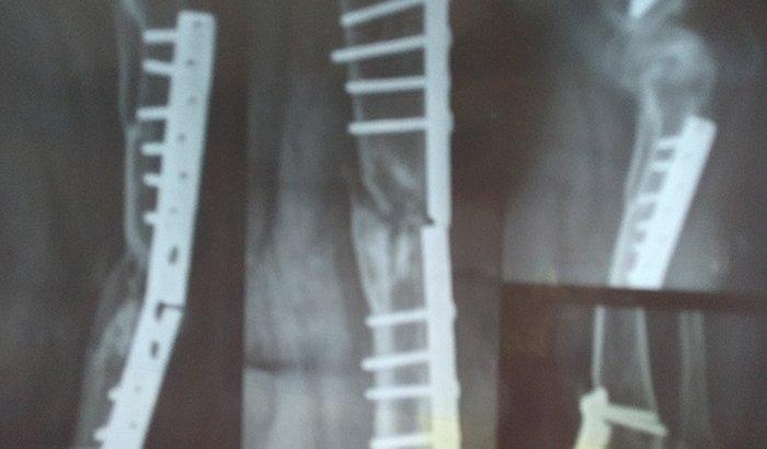 Cirurgia para voltar a andar.