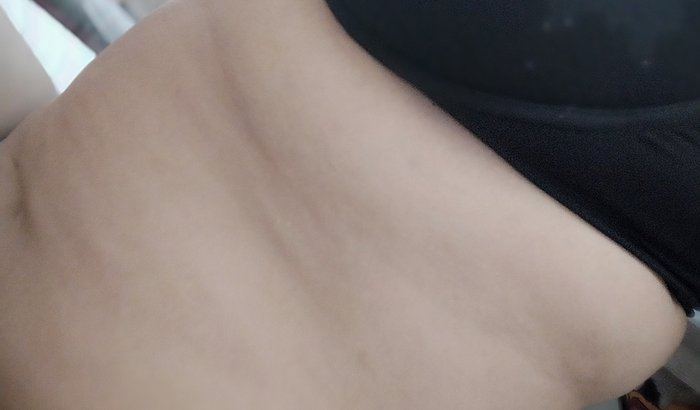 Me ajude com cirurgia de pedra na vesicula