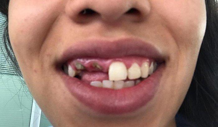 Dente quebrado :(